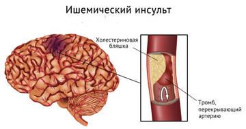 Причины микроинсульта