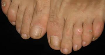 Натоптыши (сухие мозоли) на пальцах ног