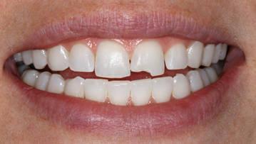 Крошение зубов