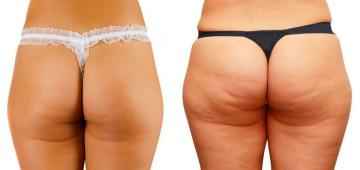 Курс стероидов для похудения