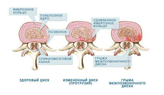 Лечение сосудов нижних конечностей в больнице им