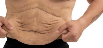 Как убрать обвисшую кожу после похудения?
