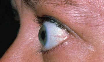 Один из симптомов гипертиреоза - выпячивание глазного яблока