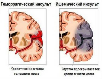Отличие геморрагического и ишемического инсульта