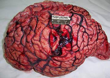 Кровоизлияние в головном мозге