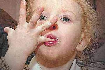 Грязные руки - причина заражения глистами