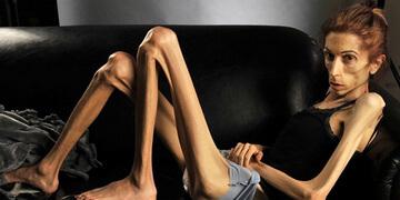 Анорексия - отказ от еды