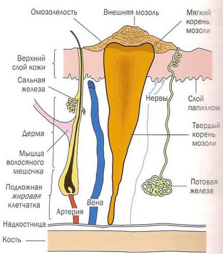 Сухая мозоль со стержнем