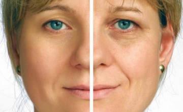 Результат проведения процедуры элос омоложения - фото до и после