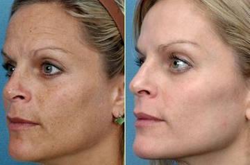 Пигментация, морщины и потеря упругости кожи - некоторые показания для проведения процедуры элос омоложения д