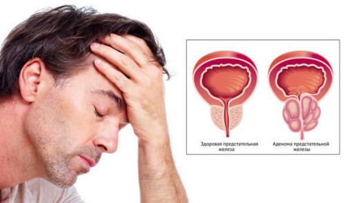 Одна из причин затрудненного мочеиспускания - аденома простаты