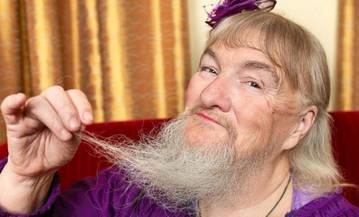 Появление волос на женском лице говорит о гормональном сбое