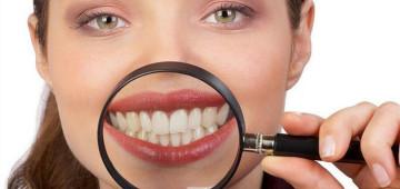 Красивые зубы - результат профилактики и заботы