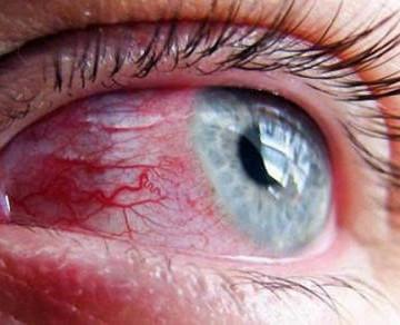 Лопнули капилляры в глазах