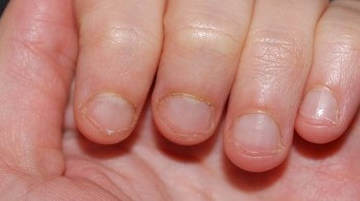 Неопрятный вид обгрызенных ногтей