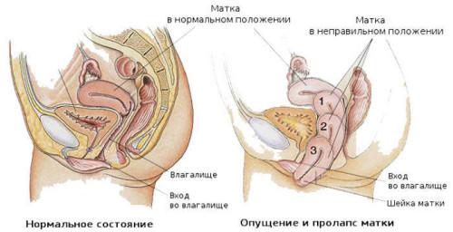 Разница между здоровой маткой и опущенной