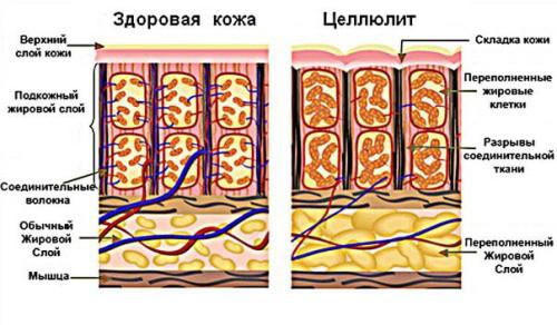 Струтура кожи здоровой и подверженной целлюлиту