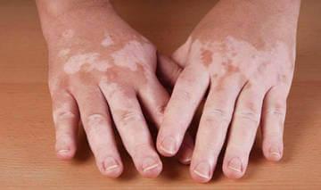 Уровень пигмента меланина влияет на цвет кожи