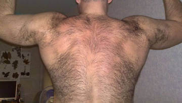 Густой волосяной покров на теле мужчины - признак повышенного уровня тестостерона