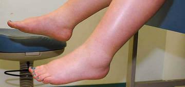 Отечность ног у пожилых людей