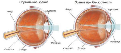 Изменение строения глаза при близорукости