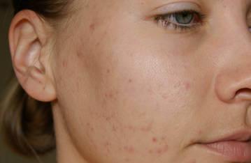 Прыщи на лице - серьезная проблема в любом возрасте