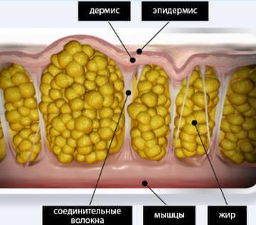 Строение кожи при целлюлите