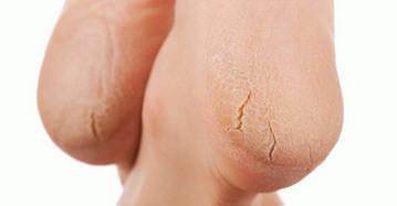 Трещины на пятках - серьезная проблема