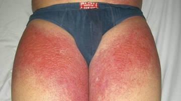 Сыпь от аллергии на солнце