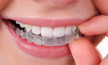 Использование капы предотвратит истирание зубов