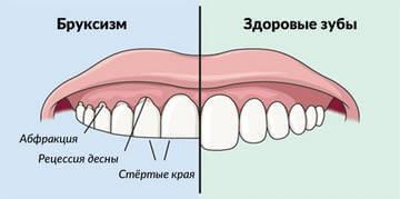 Истирание зубов при бруксизме