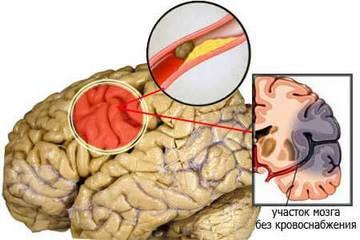 Поражение участка мозга