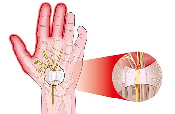 Туннельный синдром - причина онемения рук