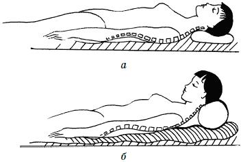 Неудобная поза во сне - причина онемения рук