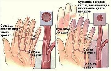 Одна из причин онемения пальцев рук - плохие сосуды