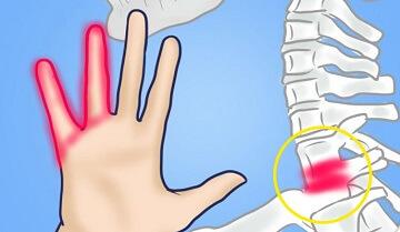 Шейный хондроз - причина онемения рук